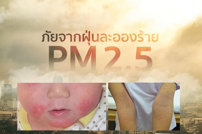 แพทย์เตือน วิกฤติฝุ่น PM 2.5 ตัวการทำ 'ผื่นภูมิแพ้ผิวหนัง' กำเริบ